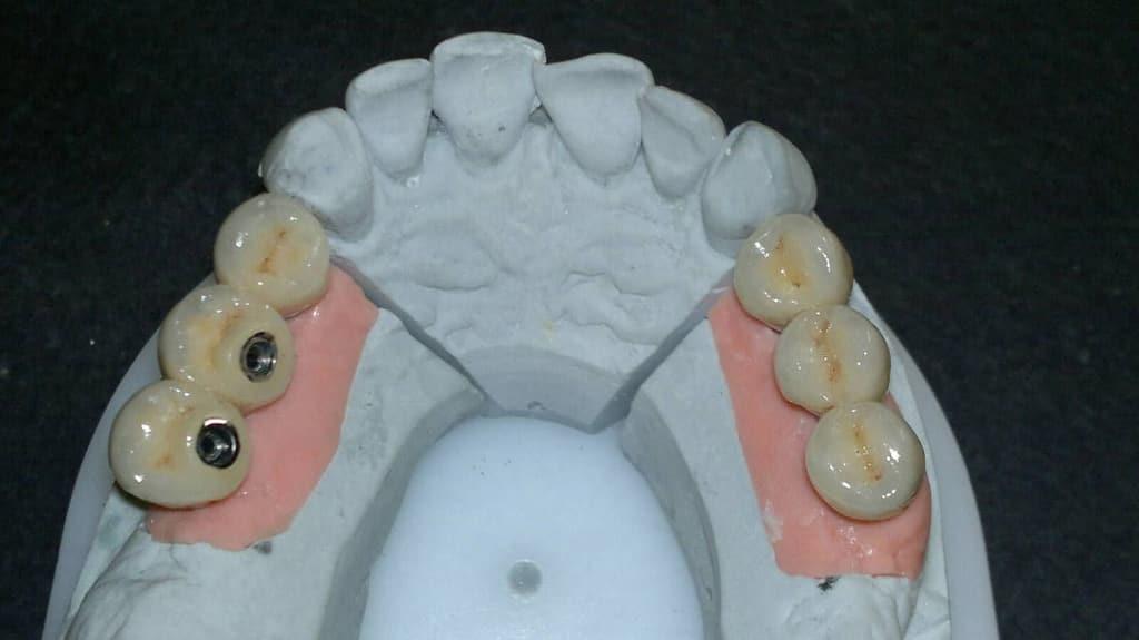 Dental Team - Studio Odontotecnico a Firenze - protesi fissa in metallo ceramica